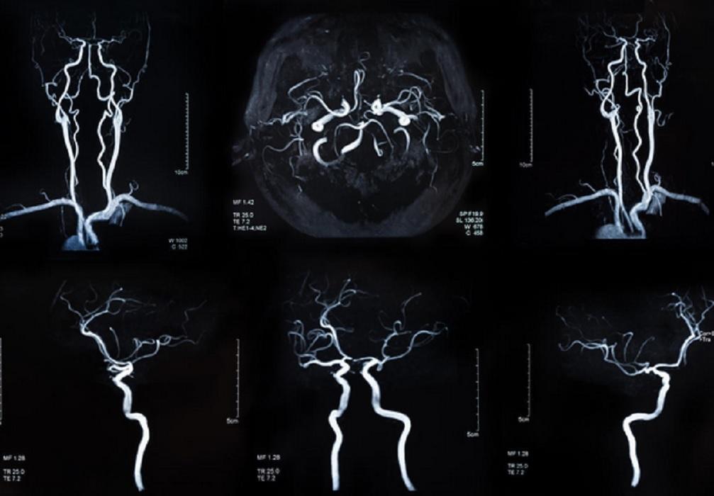Çfarë është angiografia, si funksionon dhe cilat janë rreziqet