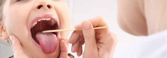 Çfarë i shkakton infeksionet e fytit?