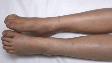 Çfarë është Henoch-Schonlein Purpura, sëmundja reumatizmale që prek fëmijët