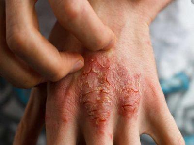 Trajtimi i Psoriasis, terapitë dhe kundërindikacionet