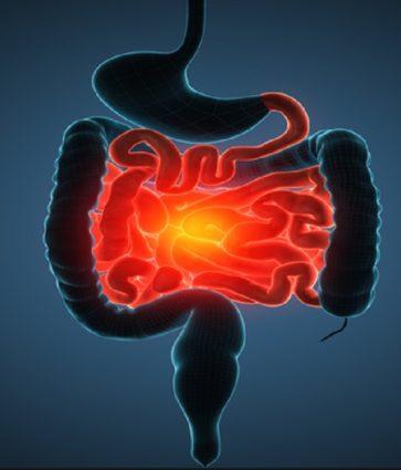 Sëmundja e Crohn/ Cilat janë simptomat dhe terapitë