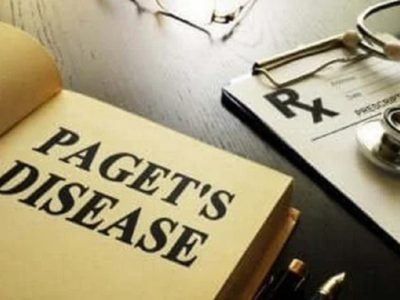 Sëmundja e Paget që prek kockat, çfarë është dhe si kurohet