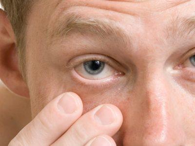 Si të parandalojmë infeksionin e syrit