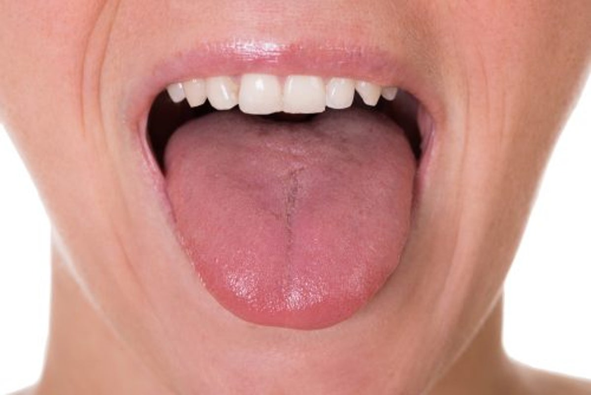 Tumori i gjuhës, mos i neglizhoni këto shenja