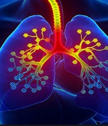 Bronkiti azmatik, simptomat dhe trajtimi