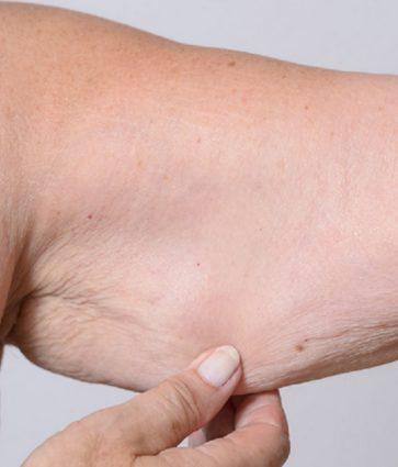 Sarkopenia, apo humbja e masës muskulore. Simptomat dhe trajtimi