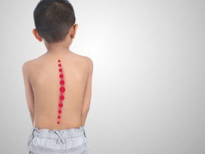 Skolioza, sëmundja e dixhitalizimit që po deformon fëmijët. Këshillat e fizioterapistit