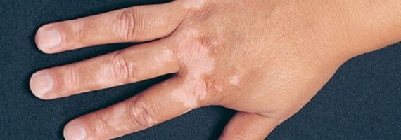 Vitiligo që prek lëkurën, simptomat dhe terapia