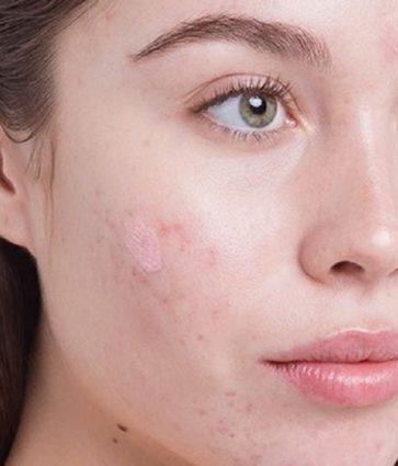 Aknet në fytyrë, pse shkaktohen dhe si kurohen
