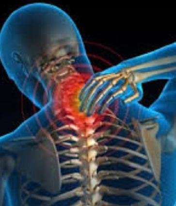 Çfarë është cervikobrakialgjia/ Shkaqet, simptomat dhe trajtimi