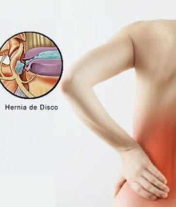 Hernie diskale/ Simptomat, ushtrimet, trajtimi dhe parandalimi