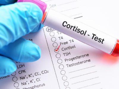 Kortizoli, hormoni i stresit. Vlerat e tij dhe si ta mbajmë në kontroll