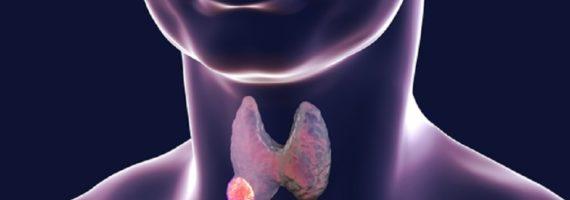 Noduset e tiroides, pse formohen dhe si trajtohen