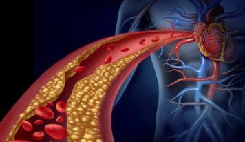 Arterioskleroza apo ateroskleroza/ Simptomat, shkaqet dhe trajtimi