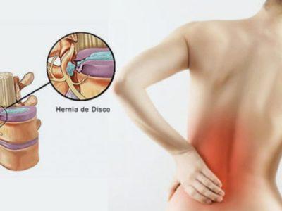Intervista/ Dr. Fatjon Hajdari: Trajtimi fizioterapeutik për hernien diskale