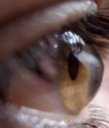Keratokonus, sëmundja e kornesë së syrit/ Shkaqet dhe simptomat