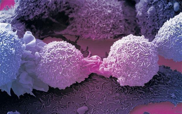RISI NGA SHKENCA/ Zbulohet aksidentalisht qeliza imune që vret disa lloje kanceri?