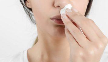 Gjak nga hunda (epistaza), shkaqet dhe trajtimi