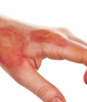 Nekroza e lëkurës, shkaqet dhe diagnoza