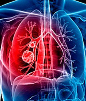 Ku ndryshon embolia nga tromboza? Simptomat e embolisë polmonare