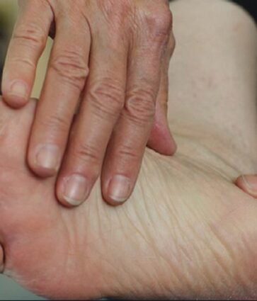 Këmba diabetike/ Simptomat, rreziqet dhe trajtimi