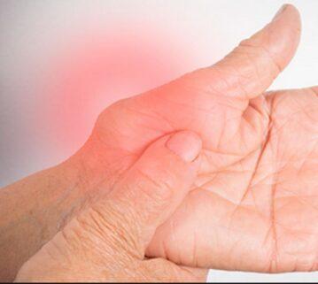 Dhimbjet nga artriti reumatoid, si t'i lehtësojmë