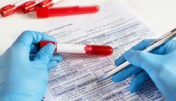 Përse duhet të jemi esëll për analizën e gjakut?