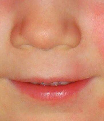 Skarlatina, çfarë duhet të dimë për sëmundjen infektive që prek fëmijët