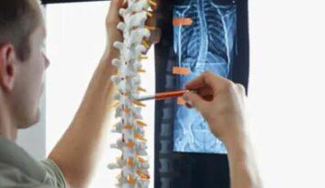 Skolioza, ushtrimet fizike që këshillohet nga specialistët