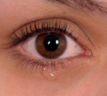 Shkaqet/ Pse lotojnë sytë?
