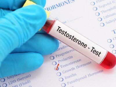 Pse duhet analiza e hormonit të testosteronit