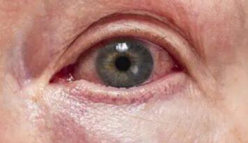 Uveiti, apo inflamacioni i syrit/ Si ta dallojmë dhe trajtimi