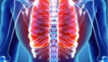 Atelektaza polmonare, shkaqet dhe simptomat