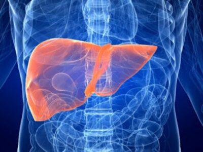 Sëmundjet e mëlçisë/ Çfarë është Kolangiti sklerotizues primar dhe si trajtohet
