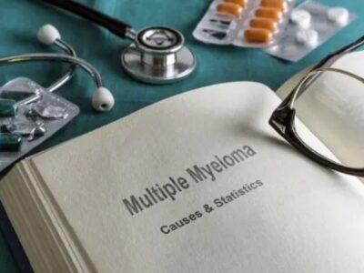 Mieloma multiple, çfarë është ky lloj tumori dhe si trajtohet