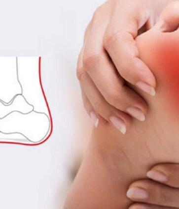 Metatarsalgjia, dhimbja e shputës së këmbës. Simptomat dhe trajtimi