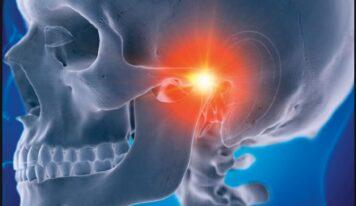 Prek nyjet e nofullës/ Sindroma Costen, shkaqet, simptomat dhe trajtimi
