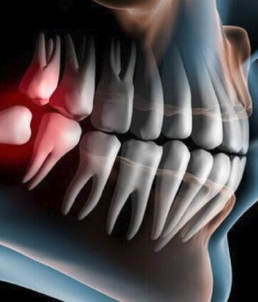 Dentitio difficilis, kur del keq dhëmballa e pjekurisë. Simptomat dhe trajtimi