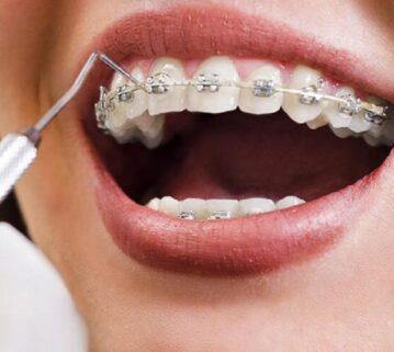 Ortodontia interceptive (zbuluese), çfarë është dhe kur është i nevojshëm