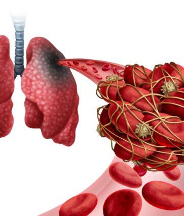 Infarkti pulmonar/ Simptomat, shkaqet, pasojat dhe trajtimi