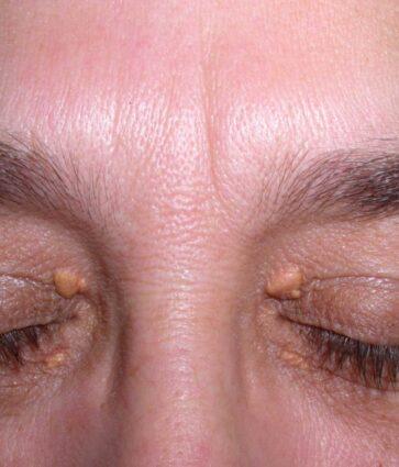 Qeskat dhjamore rreth syve, çfarë janë ksantelazmat (Xanthelasma)